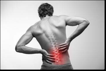 Rückenschmerzen, Bandscheibenvorfall