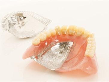 金属床入れ歯の完成イメージ