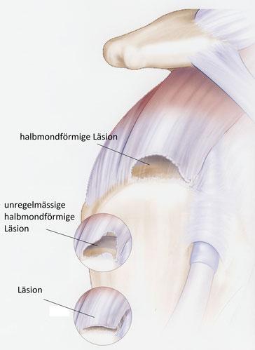 Verschiedene Rissformen der Supraspinatussehne