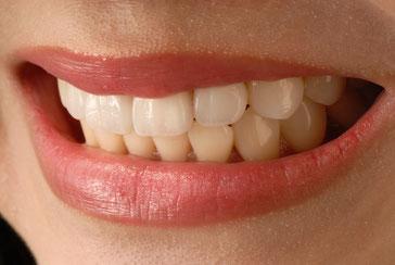 Dental treatment in Kiev