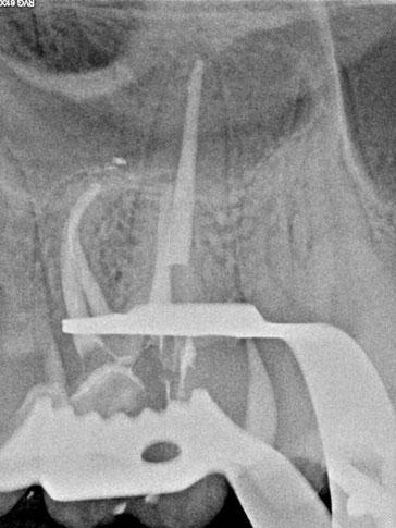 Nach der Behandlung - Wurzelkanalbehandlung