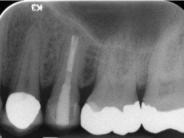 Zahnarztpraxis Dr.Gune in Dallgow-Döberitz - Revision - Ein Jahr nach der Behandlung