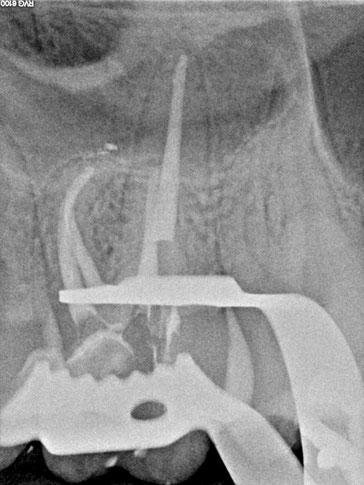 Zahnarztpraxis Dr.Gune in Dallgow-Döberitz -Mikroskopische Wurzelbehandlung - Nach der Behandlung 2