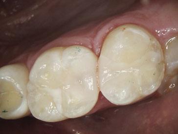 Zahnarztpraxis Dr.Gune in Dallgow-Döberitz - Fallbeispiel für Kunststofffüllung nach der Behandlung