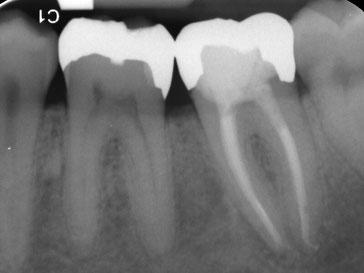 Zahnarztpraxis Dr.Gune in Dallgow-Döberitz -Mikroskopische Wurzelbehandlung - Ein Jahr nach der Behandlung