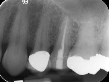 Zahnarztpraxis Dr.Gune in Dallgow-Döberitz - Revision - Ausgangssituation