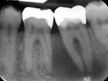 Zahnarztpraxis Dr.Gune in Dallgow-Döberitz -Mikroskopische Wurzelbehandlung - Ausgangssituation