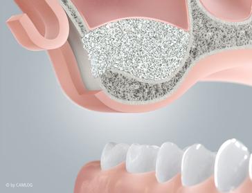 Sinuslift-Knochenaufbau im Rahmen einer Implantatversorgung