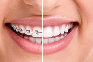 Zahnspangen - bewirken richtig Gutes