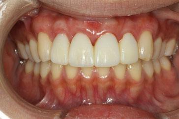 再生治療後の仮歯の状態