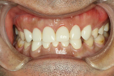仮歯を入れた後