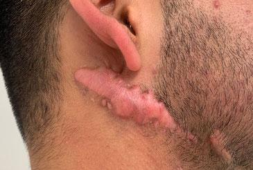 Keloid nach chirurgischer Entfernung einer Narbe ohne entsprechender Nachbehandlung
