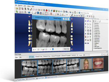 Electronic Dental Records are an integrated part of our practice management system. Our paperless system delivers electronic charting, digital imaging and enhanced case presentation where it is needed most... at chair side.