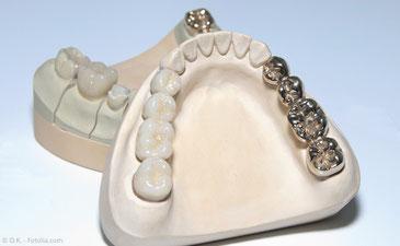 Die Kosten für eine Wurzelbehandlung betragen in der Regel nur einen Bruchteil der Kosten für Implantate und Zahnersatz.
