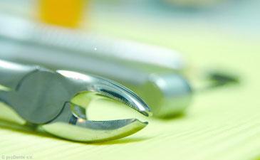 Die Alternative zur Wurzelbehandlung ist oft das Ziehen des betroffenen Zahnes