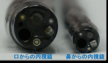 経口と経鼻胃カメラの比較