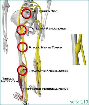 末梢神経圧迫による神経障害、麻痺、しびれ、痛み症状