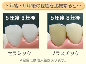 八戸市 くぼた歯科医院 セラミック ホワイトニング オススメ 安い
