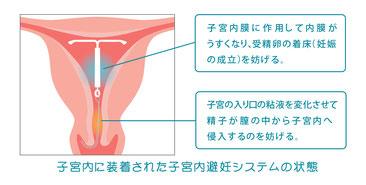 ザクリニック-ミレーナなどのその他避妊指導も行っています