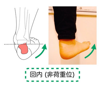 非荷重位での足関節回内
