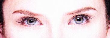 目が見えない! 視野が欠ける! 光が見える!  異物が見える!   このような「閃輝暗点」によく似た症状の眼の病気が あります。