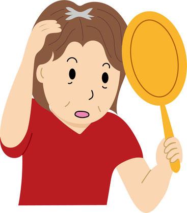 女性は純粋なのぼせ症状(高血圧、暑がり、舌が赤いなど)は天頂部が薄くなりやすく、冷えのぼせは全体の薄毛を招きやすい