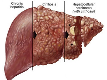 Hepatitis and cirrhosis