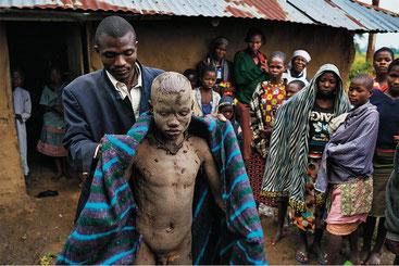 Dopo la circoncisione il padre avvolge il ragazzo in una coperta. Il rito di passaggio è finito.