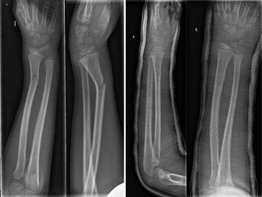 """Fuß gipsschiene Patientenmerkblatt """"Bänderriss"""