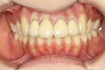治療前の歯茎の退縮