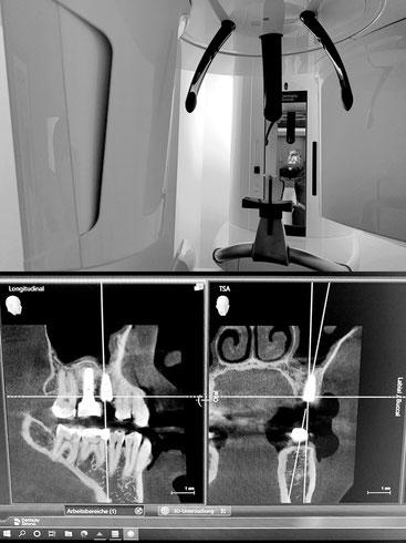 DVT (3D-Röntgen - Digitale Volumentomographie) - Zahnärztliche Gemeinschaftspraxis Dr. Julia Tehsmer und Dr. Linda Bodart
