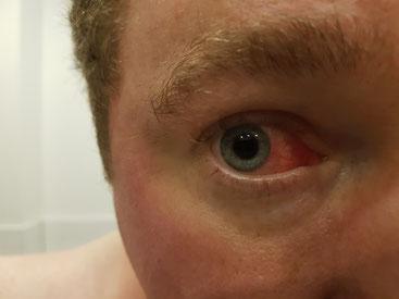 Reizung des Auges mit Palytoxin