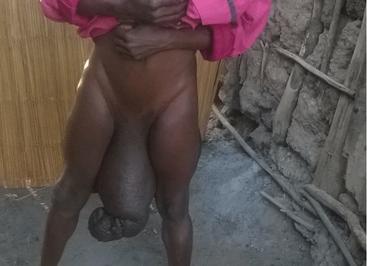 Sorence Owiti Opiyo, della contea di Kisumu, soffriva di una rara condizione che ha visto il suo pene crescere fino alle dimensioni di un bambino.
