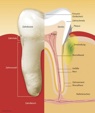 Zahnverlust vorbeugen in München Bogenhausen Zahnarzt Michael Riedel