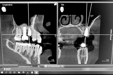 DVT (3D-Röntgen) - Digitale Volumentomographie) - Zahnärztliche Gemeinschaftspraxis Dr. Julia Tehsmer und Dr. Linda Bodart