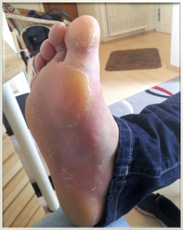 Typische Hautreaktionen nach einem Spinnenbiss.