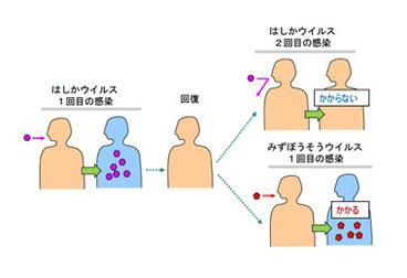 獲得免疫の特徴:はしかにかかった人は2度とはしかにかからないが、みずぼうそうにはかかってしまう