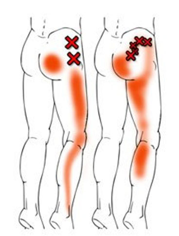 「赤色」が痛みのある所 「Xマーク」が原因の筋肉