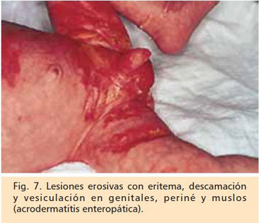 acrodermatitis enteropatica