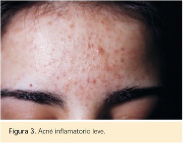 acne inflamatorio