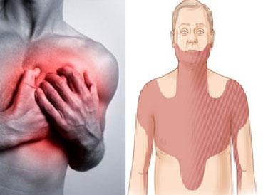 Reacción típica ante un infarto y zonas donde se puede sentir el dolor