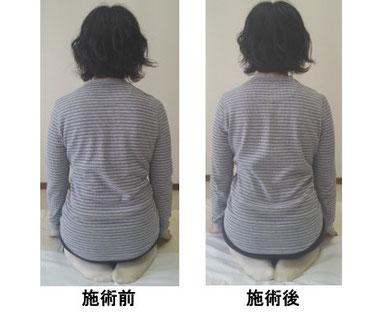 小金井市の肩こり腰痛の女性