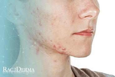 tratamiento para el acné racderma, cicatrices de acné, tratamiento para el acné, eliminar el acné, acné en adolescentes