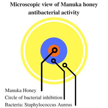 Microscopic view of Manuka honey antibacterial activity