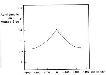 Timpanograma normal. En el eje de abcisas están representadas las variaciones de presión y en el eje de ordenadas las variaciones de admitancia del oído. El punto de admitancia máxima está centrado en 0 mm de H2O