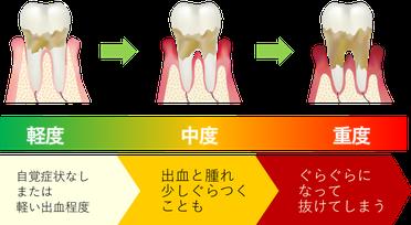 八戸市 歯医者 歯周病 歯茎 くぼた歯科