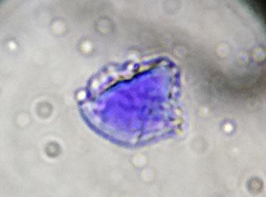 図 実験サンプルから得た花粉粒子候補第一号
