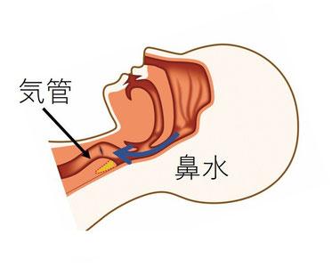 就寝時に鼻水は、ゆっくり喉に流れ気管の手前まで流れる