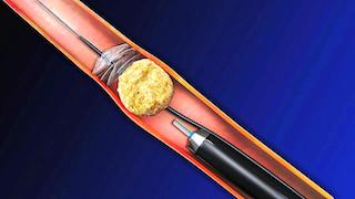 ureteroscopie