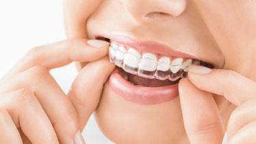 筑紫野市にある歯医者 安田歯科・矯正歯科医院では矯正治療が可能です。マウスピース矯正・リンガル矯正(裏側矯正)